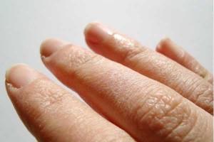 como-cuidar-las-manos-agrietadas-sequedad