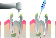 roturas endodoncias normal