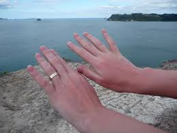 alergia al sol